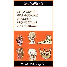 Atlas color de afecciones músculo esqueléticas más comunes: Más de 130 imágenes