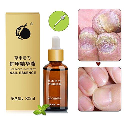 Nagelpilz Entferner,Behandlung von nagelpilz,Nagelpilz Öl,Nagelpflege Antibakteriell und pflegend Für Fuß und Hand,30ml