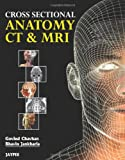 Cross Sectional Anatomy Ct And Mri