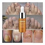 HI5 LANBENA Nail Treatment Nail Fungus Repair Essence Serum Fungal toenail fungus Remove