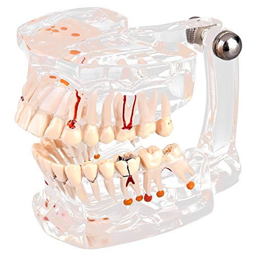 Transparent Implantat Krankheit Teaching Studie standrard Zähne Modell Demonstration pathologischen Educational Zahn Teaching Tools -