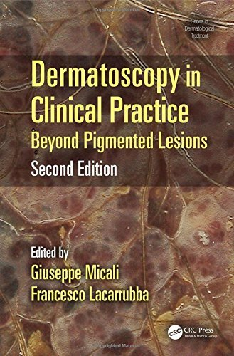 Dermatoscopy in Clinical Practice, Second Edition: Beyond Pigmented Lesions (Series in Dermatological Treatment) (2016-04-15)