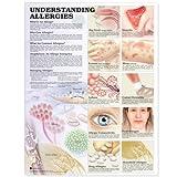 Understanding Alergies - Tabla anatómica