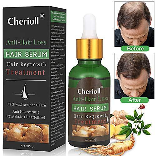 Haar Wachstum Serum, Haarausfall und Haar-Behandlung, Haar Serum, Neues Haarwachstum stimuliert,...