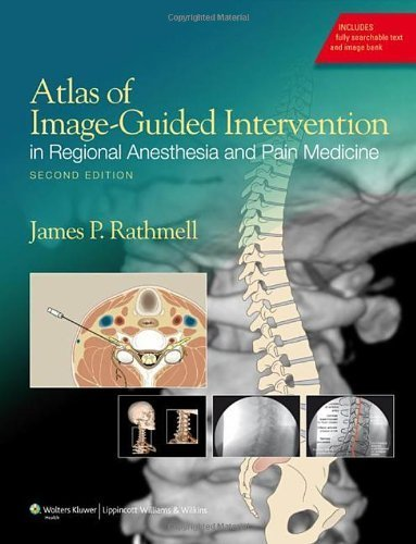 Atlas of Image-Guided Intervention in Regional Anesthesia and Pain Medicine 2nd by Rathmell MD, James P. (2011) Hardcover