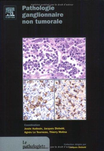 Pathologie ganglionnaire non tumorale par Jacques Diebold, Josée Audouin, Agnès Le Tourneau, Thierry Molina