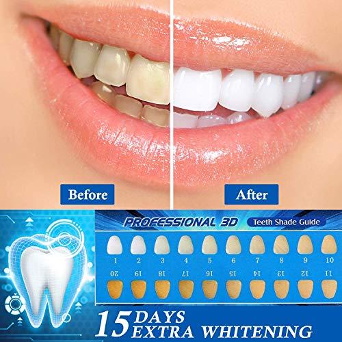 Zoom IMG-1 teeth whitening kit sbiancamento denti