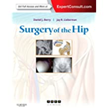 Surgery of the Hip: Expert Consult - Online and Print, 1e