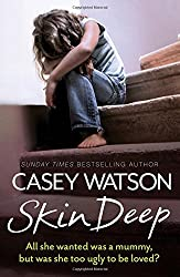 Skin Deep: All she wanted was a mummy, but was she too ugly to be loved? by Casey Watson (2015-10-22)