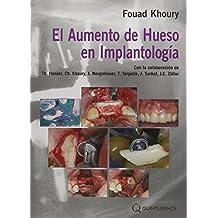 El Aumento de Hueso en Implantología