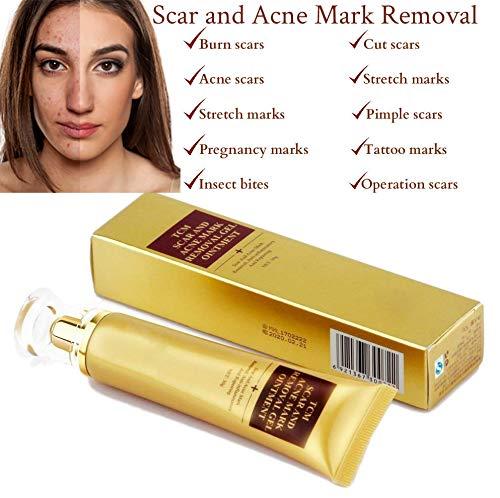 Skinrosa scar removal cream and acne trattamento crema - efficace per rimuovere macchie e cicatrici, smagliature come ustioni, tagli, gravidanza, acne, pelle arrossamento ecc.