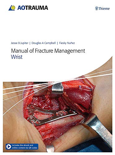 Handgelenk Frakturen (Manual of Fracture Management - Wrist)