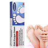Fußpilz-Creme, Fußcreme,effektiv behandelt den Fuß des Fußes, kuriert und verhindert Pilzinfektionen20g