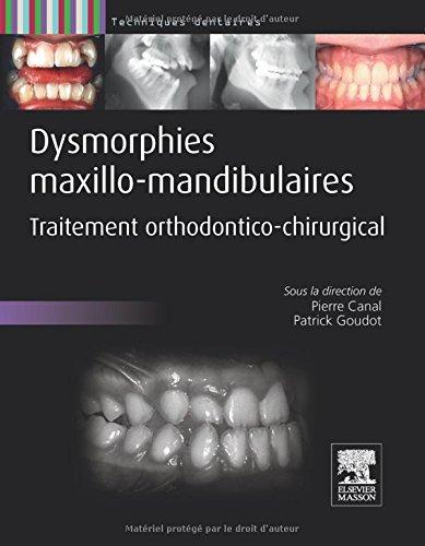 Dysmorphies maxillo-mandibulaires: Traitement orthodontico-chirurgical