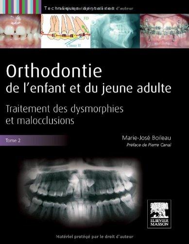 Orthodontie de l'enfant et du jeune adulte -Tome 2: Traitement des dysmorphies et malocclusions