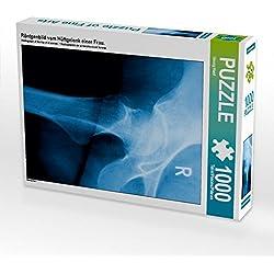 Röntgenbild vom Hüftgelenk Einer Frau. 1000 Teile Puzzle Hoch