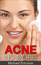 Acne No More: The Secret Of Living An Acne Free Life, A Guide To Acne Treatment, Acne Cure, Acne Remedies And Acne Diet For Perfect Clear Skin (Acne Cure, ... Guide To Acne Free Skin) (English Edition)