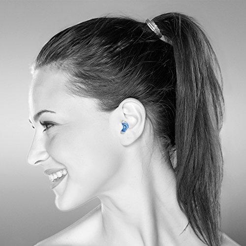 Gehörschutz Erwachsene: Senner MusicPro Gehörschutz Ohrstöpsel