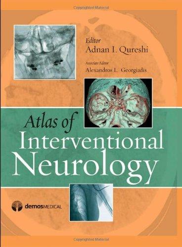 Atlas of Interventional Neurology by Adnan I. Qureshi MD (2008-10-15)