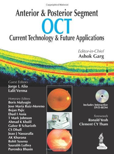 Anterior & Posterior Segment OCT: Current Technology & Future Applications by Ashok Garg (1-Mar-1964) Paperback
