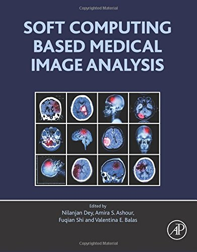 Soft Computing Based Medical Image Analysis