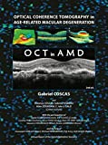Optical Coherence Tomography in Age-Related Macular Degeneration (OCT in AMD)