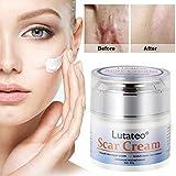 Narbencreme, Narbensalbe, Akne Narbe entfernen creme, Scar Fade Cream,Behandeln Sie neue und alte...