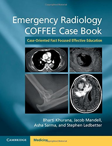 Emergency Radiology COFFEE Case Book: Case-Oriented Fast Focused Effective Education (2016-05-06)