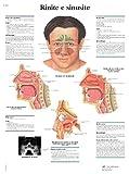 Rinite e sinusite (Anatomische Lehrtafeln zu diversen medizinischen Themen)