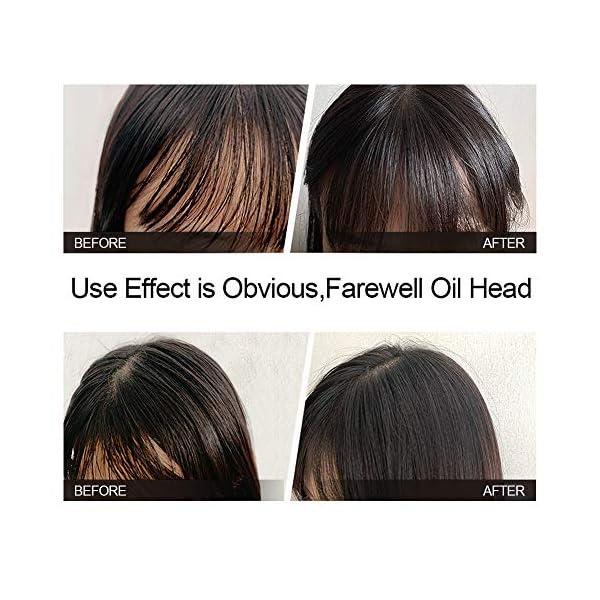 Polvo matificante para el cabello, polvo de peinado esponjoso portátil adecuado para el cuidado del estilo de cabello…