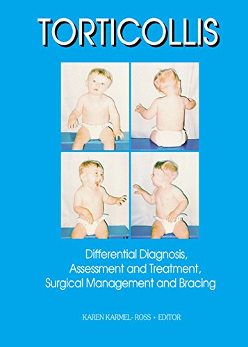 Torticollis: Differential Diagnosis, Assessment and Treatment, Surgical Management and Bracing (Physical & Occupational Therapy in Pediatrics, V. 17, No. 2)