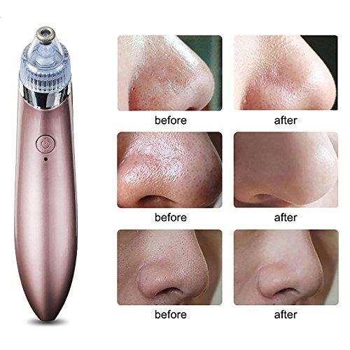 Elektrischer Mitesser Entferner und Poren Reiniger Gesichts Porenreiniger mit 4 auswechselbaren Köpfen / USB-Aufladung (Rosegold)