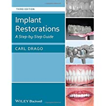 Implant Restorations: A Step-by-Step Guide