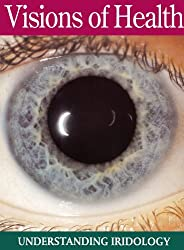 Visions of Health: Understanding Iridology