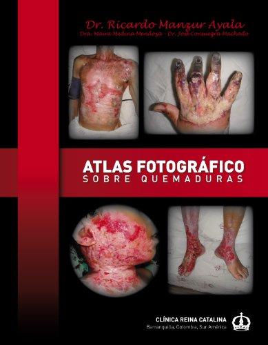 Atlas Fotografico Sobre Quemaduras (Spanish Edition)
