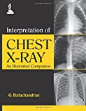 Interpretation of Chest X-Ray: An Illustrated Companion
