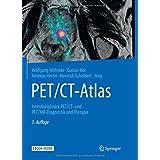PET/CT-Atlas: Interdisziplinäre PET/CT- und PET/MR-Diagnostik und Therapie