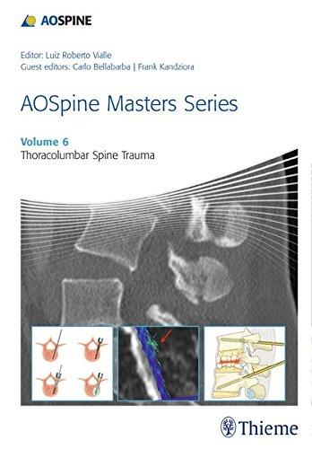 thoracolumbar-spine-trauma-aospine-masters