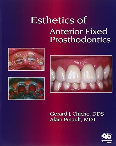 Esthetics of Anterior Fixed Prosthodontics 1st Edition by Chiche, Gerard, Pinault, Alain (1994) Hardcover