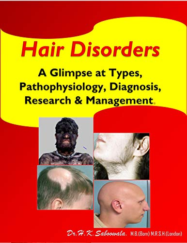 Hair Disorders:   A glimpse at Types, Pathophysiology, Diagnosis, Research & Management. (English Edition)