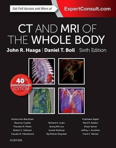CT and MRI of the Whole Body, 2-Volume Set (Else04)