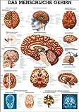 Ruediger Anatomie MIPO14LAM Das menschliche Gehirn Tafel, 24 cm x 34 cm, laminiert