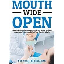Mouth Wide Open: How To Ask Intelligent Questions About Dental Implants and Actually Understand What Your Dentist Is Saying (English Edition)