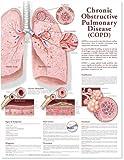 Gráfico anatómico de enfermedad pulmonar obstructiva crónica