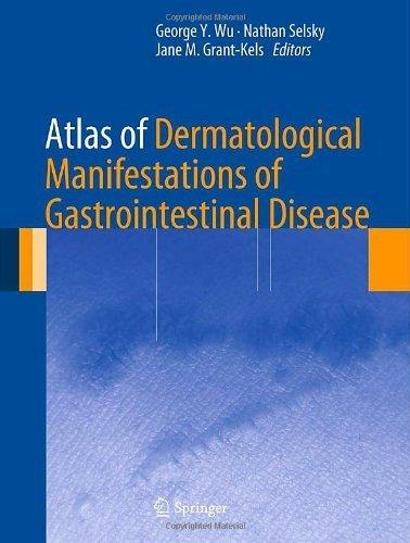 Atlas of Dermatological Manifestations of Gastrointestinal Disease by Springer (2013-02-13)