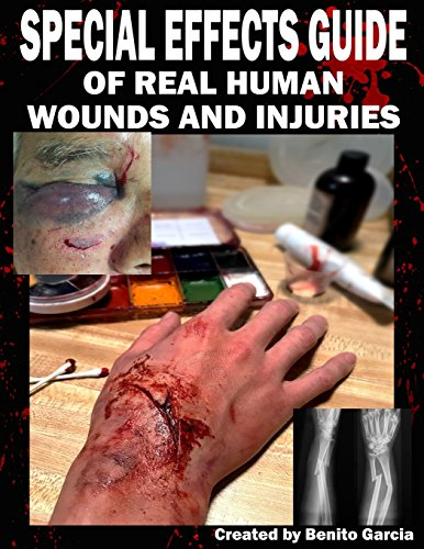 Special Effects Guide Of Real Human Wounds and Injuries: Special Effects Guide Of Real Human Wounds and Injuries por Mr Benito Garcia III