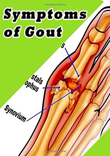 Symptoms of Gout: Pain In The Toe - Swelling - Sudden Pain - Skin Peeling - Pain At Night - Hot Sensation - Fever - Kidney Stones - Chronic Tophaceous Gout - Limited Range of Motion