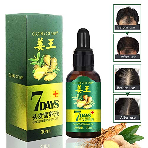 Haar Wachstum Serum,Haar serum, Haarausfall und Haar-Behandlung, Neues Haarwachstum stimuliert, Volleres und schneller wachsenden Haar,regeneriert und stärkt das Haar (30ml)