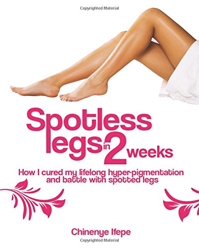 Spotless Legs In Two Weeks: How I cured my lifelong pigmentation and battle with spotted legs