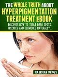Hyperpigmentation Treatments Review and Comparison